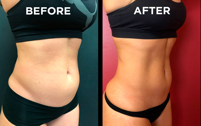 West Orange New Jersey EmSculpting - Burn Fat and Build Muscle